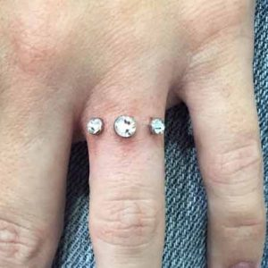 Dermal engagement ring